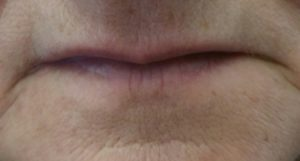 loss of lip line due to aging, thin lips, color fades from aging